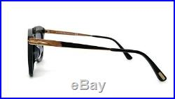 Tom Ford Anna-02 TF0575 01B Black Gold / Gray 49mm Sunglasses FT0575